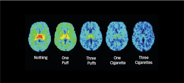 Brain smoking - nicotine dependence